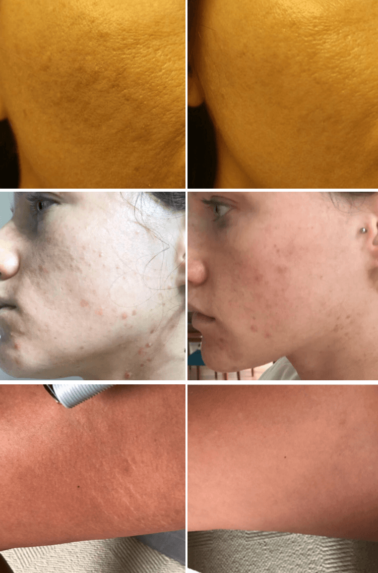 Before After Microneedling